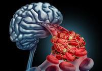 身體出現5種症狀,多半是腦梗要來
