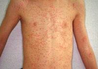 一大波麻疹來襲 疾控中心專家提示:如何科學防控麻疹