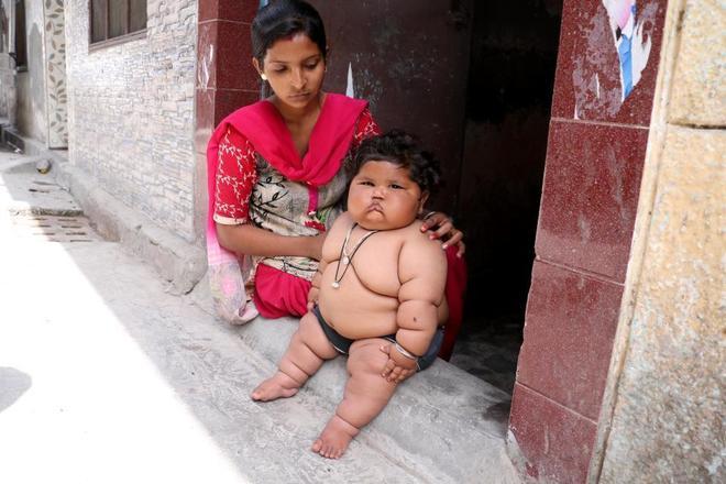 """印度女孩酷似""""米其林"""""""