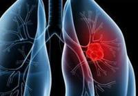 針對高風險人群肺癌篩查需注意什麼