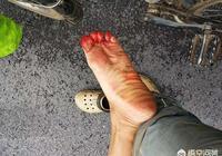 農村老人說把螞蝗燒成灰,只要把灰放在水裡,不久就會有很多小螞蝗了,是真的嗎?