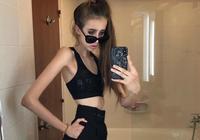 俄羅斯女孩減肥至30kg,大腿比平常人胳膊還細,風大都不敢出門!
