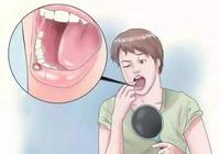 為什麼有人經常會長口腔潰瘍?口腔潰瘍與什麼因素相關