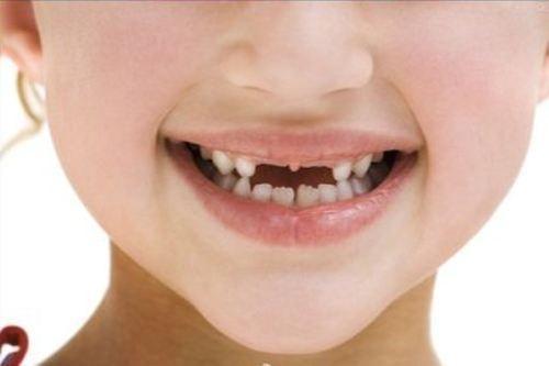 """兒童換牙期,這幾個誤區,媽媽們一定要注意,別給孩子""""幫倒忙"""""""