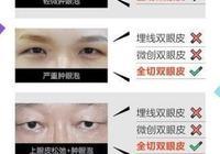 雙眼皮整形術圖解