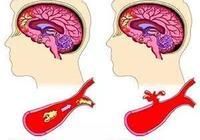 為什麼現在有些人會患腦梗、腦出血?