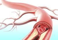 防止動脈硬化的幾大措施