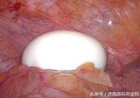 """一臺闌尾切除手術中,醫生從患者的腹腔中取出了一個""""鵪鶉蛋"""""""