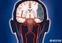血壓降太低會得腦梗塞,是真的嗎?該怎麼處理?