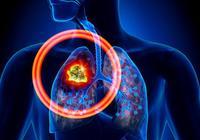 肺癌術後飲食是怎樣的呢?肺癌術後應該如何護理