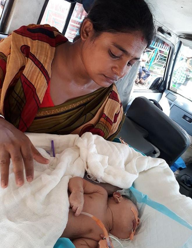 印度一剛出生嬰兒脖子上長了個肉球比頭還大,醫生建議父母放棄