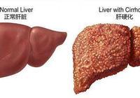 肝硬化比肝癌更可怕?得了肝硬化,還能治嗎?