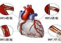 冠心病、心臟病患者需做心臟支架嗎?哪些情況下要做心臟支架?