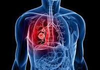 肺癌遺傳嗎?通過基因檢測可以提前預測肺癌!