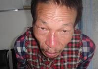 廣安救助站:六旬精神障礙老人急尋家屬,身高約1米55,駝背