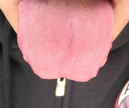舌頭出現這個信號,脾虛很嚴重!健脾祛溼,這個小方子存好了!