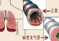急性支氣管炎和慢性支氣管炎該怎麼治療?