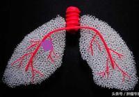 古人得不得肺癌?古代中醫是如何治療肺癌的呢?