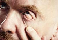 眼睛充血或是動脈硬化惹禍 動脈硬化怎麼辦?