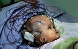 難民女嬰最後的幸福:外國網友萬里尋醫,感動億萬人