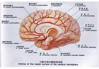 腦出血是怎麼引起的?