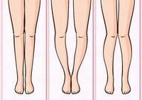 女生X型腿怎么办?