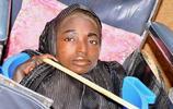 奈及利亞少女在塑料盆裡生活了19年,一次發燒帶給她一生的悲劇