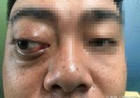 """小心""""金魚眼""""是腫瘤!湖南男子就中招啦!"""