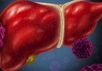 肝硬化''傷不起'',患上肝硬化腹水是否傳染?