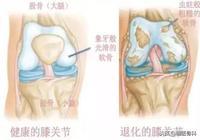 王大媽膝痛患了骨關節炎,骨科專家10答解治療之惑!