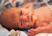 如何讓早產兒擁有健康的未來