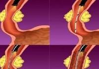 食管癌檢查 為食管癌治癒帶來新希望