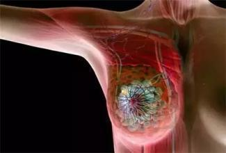 癌症≠死亡!哪些癌症是可以治癒的?