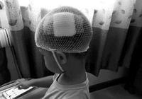 伸出小手玩鬧 卻被家長踢傷 男童頭部傷口縫5針 警方已調查
