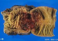 大腸癌和哪些因素有關?應該如何預防大腸癌?