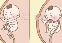 福孕媽媽丨孕媽身體出現這種感覺,很有可能是寶寶臍帶繞頸了!