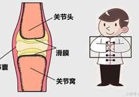 膝蓋總是咔咔響怎麼回事?聽響聲可以辨疾病!你的關節怎麼響的?