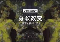 36氪紀錄片|四個女孩的「整形」日記