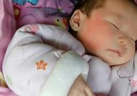 寶寶護理之溼疹的護理