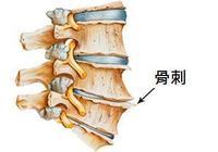 白朮治療骨刺