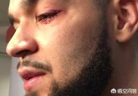 範弗利特在東決G3中左眼受傷,為什麼有些球迷反而希望他因傷缺陣?