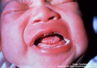 小兒為何容易患鵝口瘡?