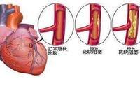 如何避免心臟病反覆發作?醫生教你8條祕籍