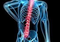 醫學科普~北醫三院脊柱專家講述什麼是頸腰綜合徵?