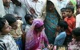 印度的畸形兒,因擁有雙面被愚昧的人們尊為神子,家人放棄治療