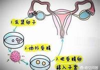"""試管嬰兒究竟是怎樣的""""試管""""過程?需要注意什麼事項?"""
