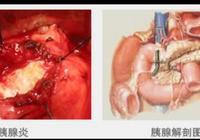 胰腺炎是怎麼發生的