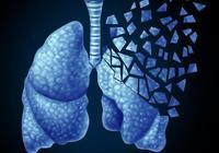 驗血可以查出肺癌嗎?肺癌還有哪些診斷依據