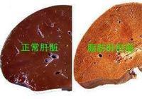 肥胖併發症之脂肪肝(二)