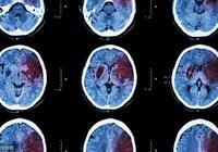 """45歲以後,身體出現3種症狀,可能是腦出血""""徵兆"""",儘早查下CT"""